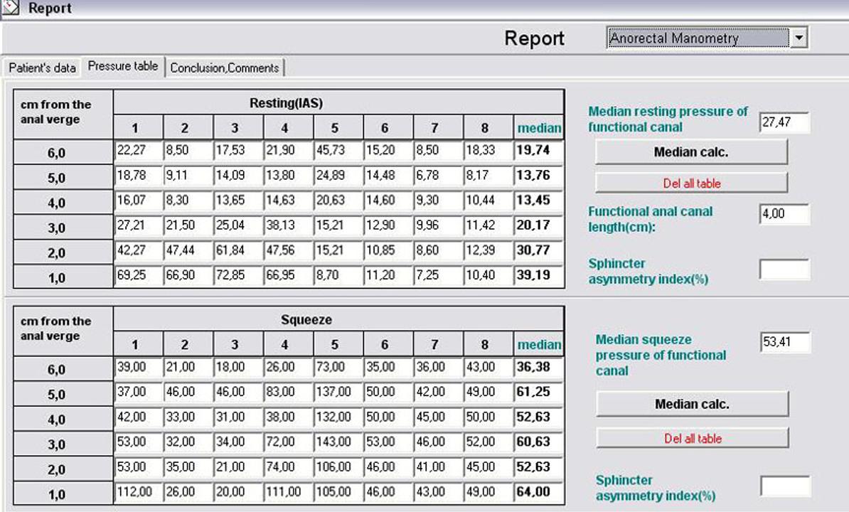 Software para manometria anorretal e biofeedback.